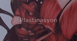 Plastinasyon