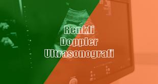 Renkli Doppler Ultrasonografi